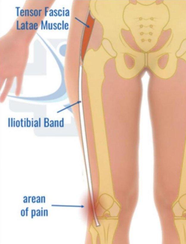 Síndrome da Banda Iliotibial